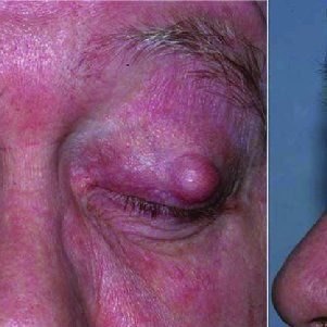 Granular facial cyst