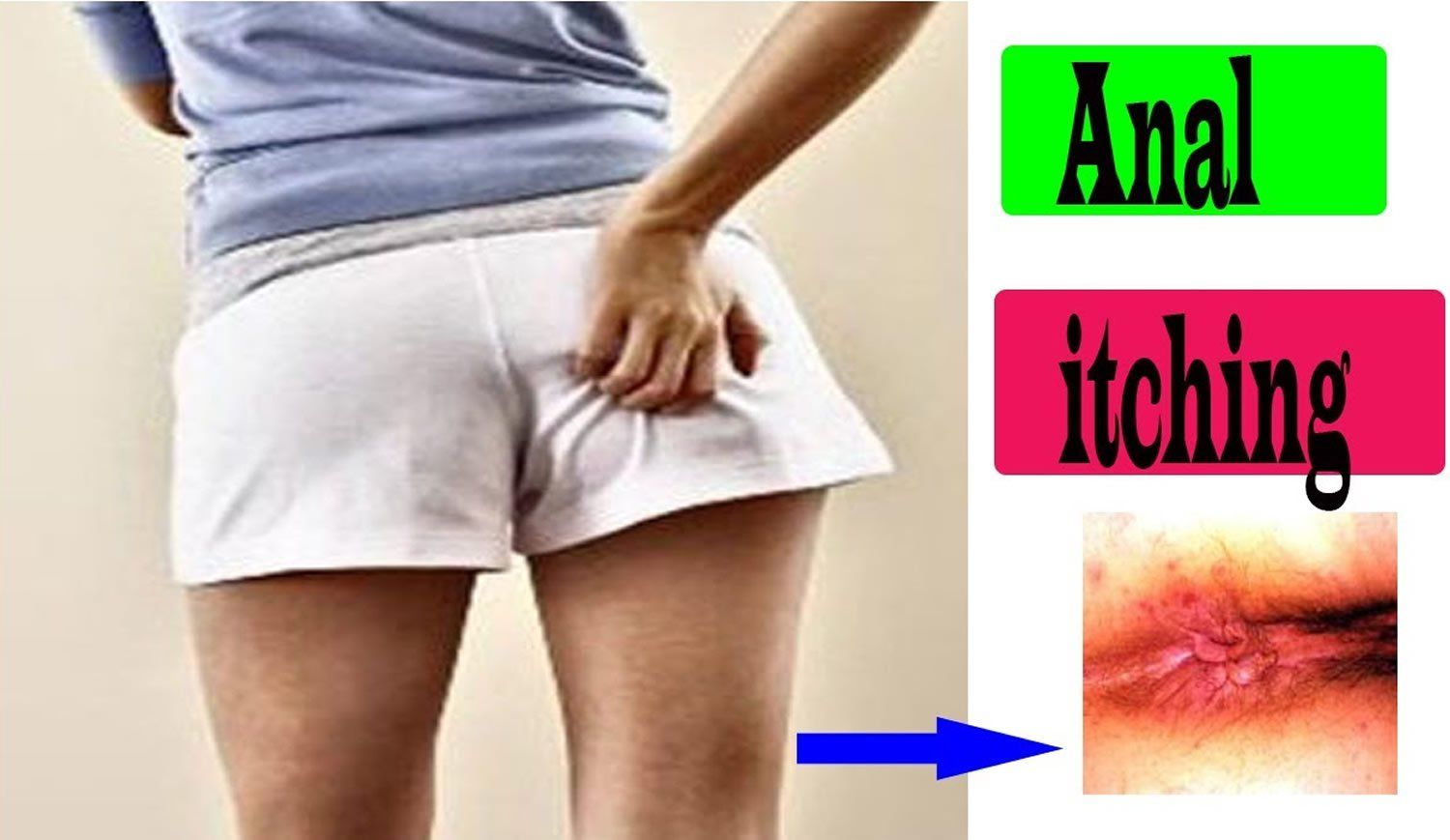 best of Skin anus dry Itchy